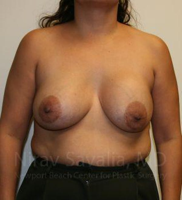 Breast Implant Revision Gallery - Patient 1655529 - Image 1