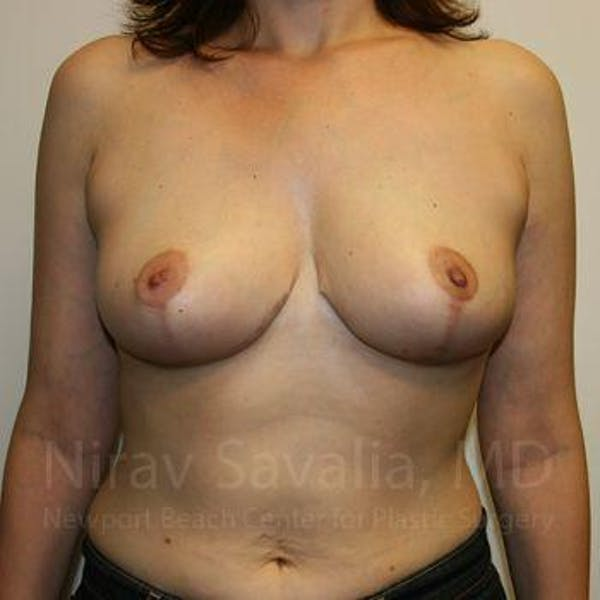 Breast Reduction Gallery - Patient 1655527 - Image 2