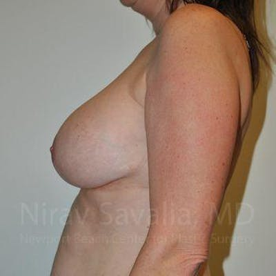 Breast Lift with Implants Gallery - Patient 1655526 - Image 6