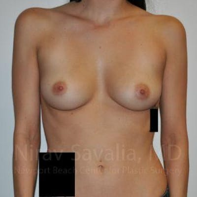 Breast Augmentation Gallery - Patient 1655528 - Image 1