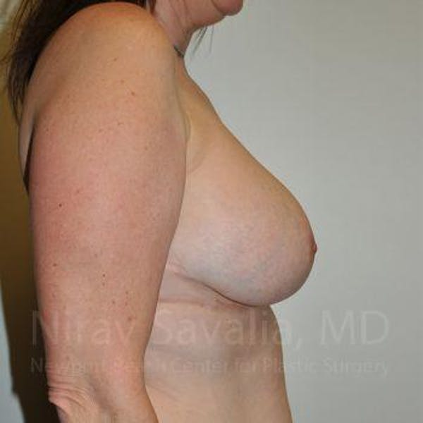 Breast Lift with Implants Gallery - Patient 1655526 - Image 8
