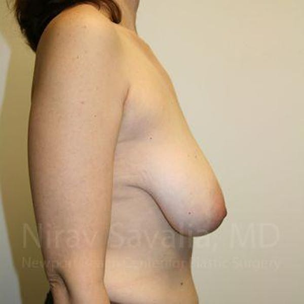 Breast Reduction Gallery - Patient 1655527 - Image 5
