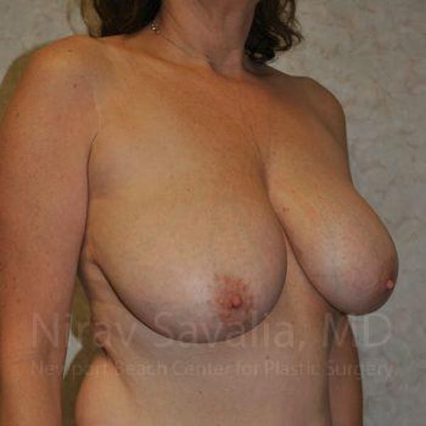 Breast Lift with Implants Gallery - Patient 1655526 - Image 9