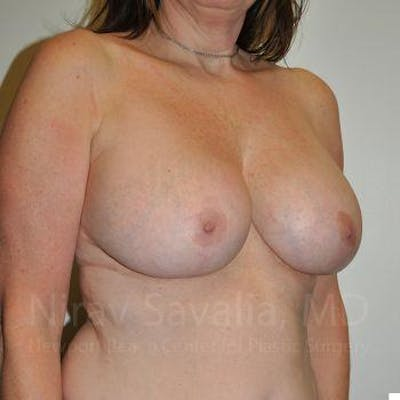 Breast Lift with Implants Gallery - Patient 1655526 - Image 10