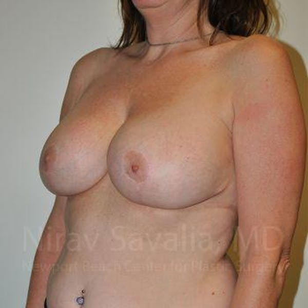 Breast Lift with Implants Gallery - Patient 1655526 - Image 12