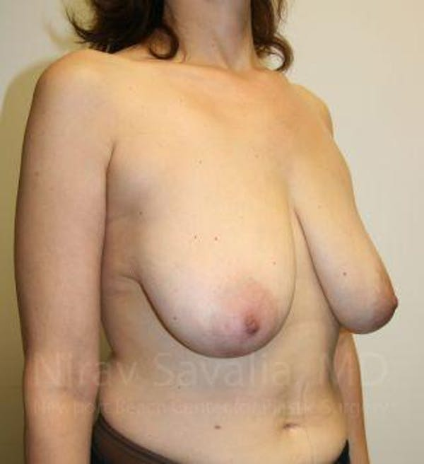 Breast Reduction Gallery - Patient 1655527 - Image 9