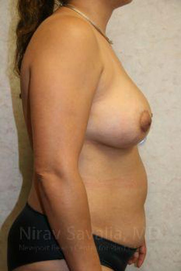 Breast Implant Revision Gallery - Patient 1655529 - Image 10