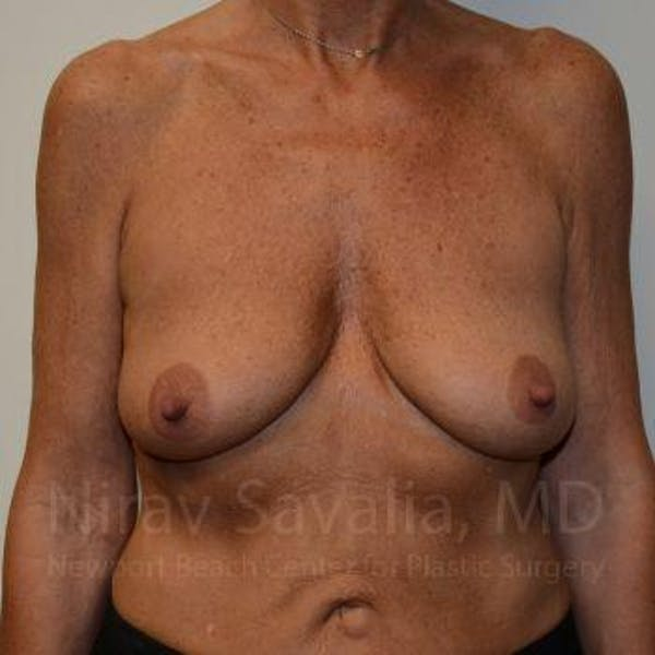Breast Lift with Implants Gallery - Patient 1655532 - Image 1