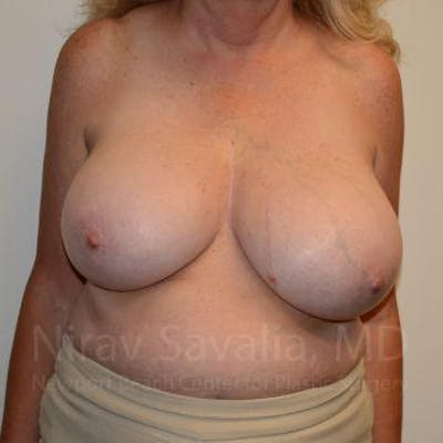 Breast Reduction Gallery - Patient 1655533 - Image 1