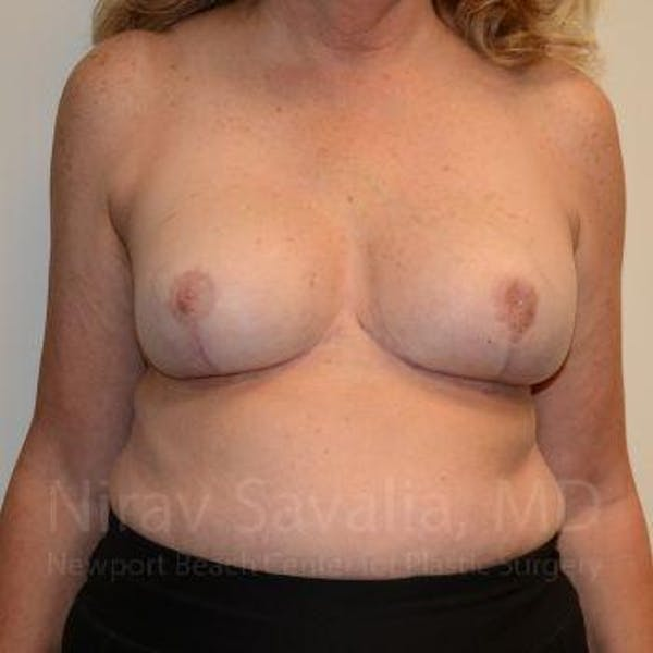 Breast Reduction Gallery - Patient 1655533 - Image 2