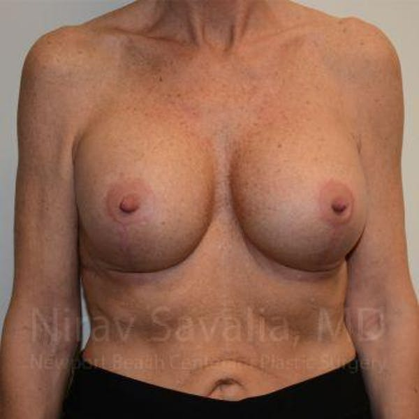 Breast Lift with Implants Gallery - Patient 1655532 - Image 2