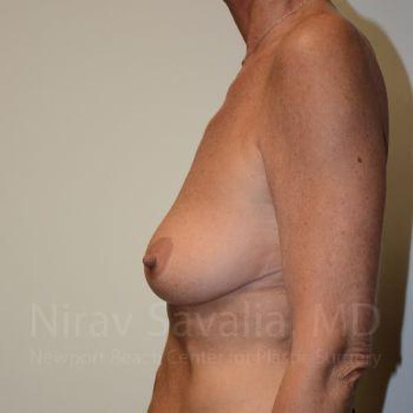 Breast Lift with Implants Gallery - Patient 1655532 - Image 3