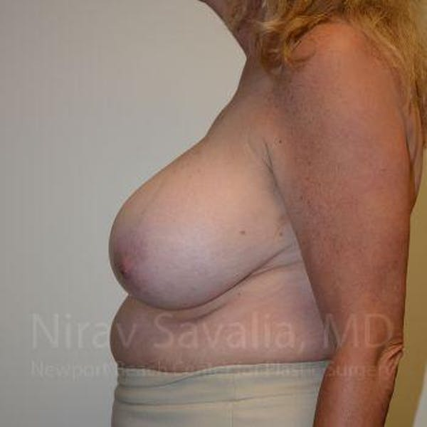 Breast Reduction Gallery - Patient 1655533 - Image 3