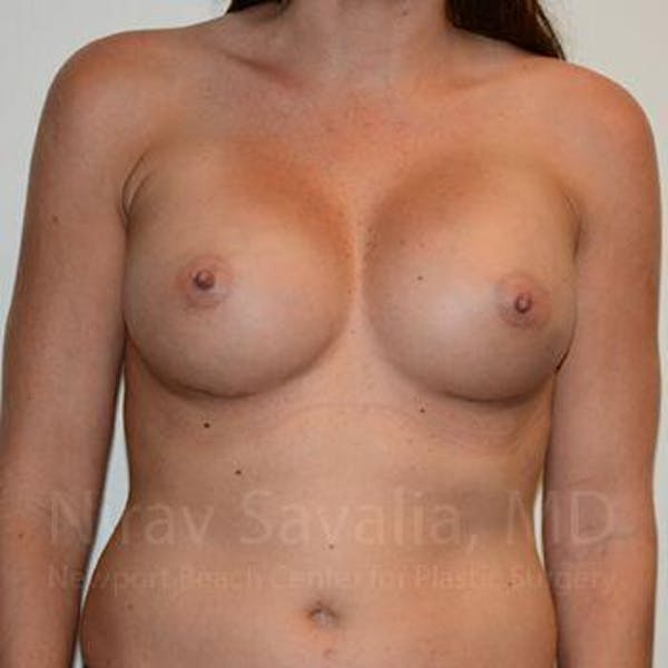 Breast Augmentation Gallery - Patient 1655531 - Image 2