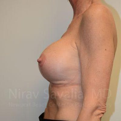 Breast Lift with Implants Gallery - Patient 1655532 - Image 4
