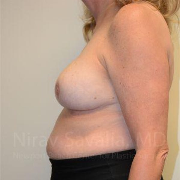 Breast Reduction Gallery - Patient 1655533 - Image 4