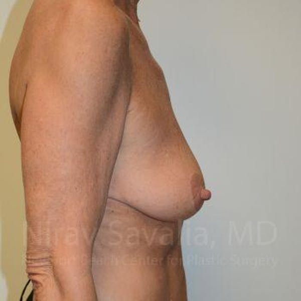 Breast Lift with Implants Gallery - Patient 1655532 - Image 5