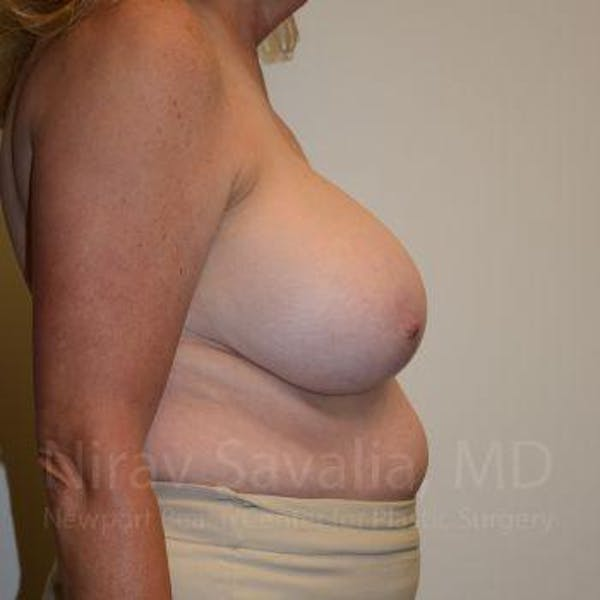 Breast Reduction Gallery - Patient 1655533 - Image 5