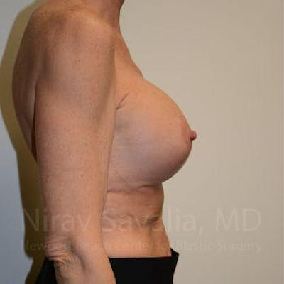 Breast Lift with Implants Gallery - Patient 1655532 - Image 6