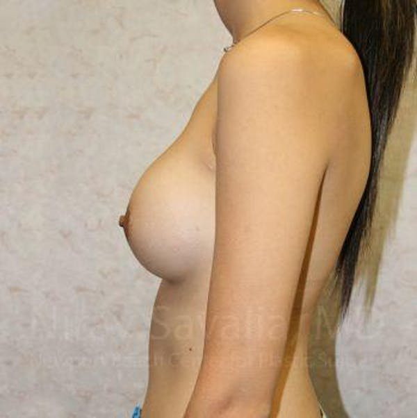 Breast Implant Revision Gallery - Patient 1655530 - Image 5