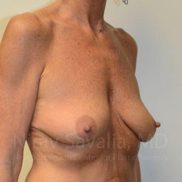 Breast Lift with Implants Gallery - Patient 1655532 - Image 7