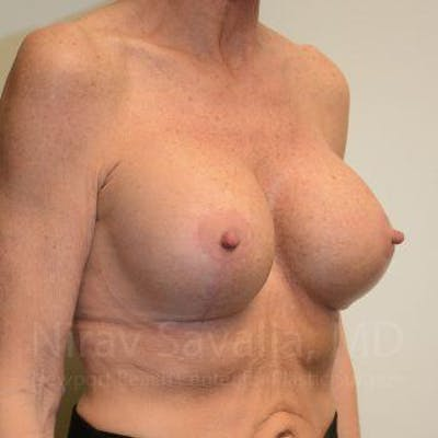 Breast Lift with Implants Gallery - Patient 1655532 - Image 8