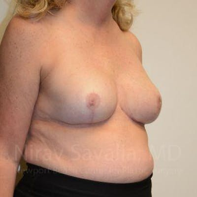 Breast Reduction Gallery - Patient 1655533 - Image 8