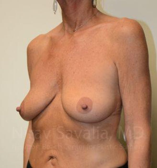 Breast Lift with Implants Gallery - Patient 1655532 - Image 9