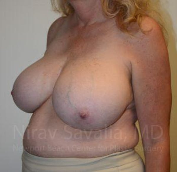 Breast Reduction Gallery - Patient 1655533 - Image 9
