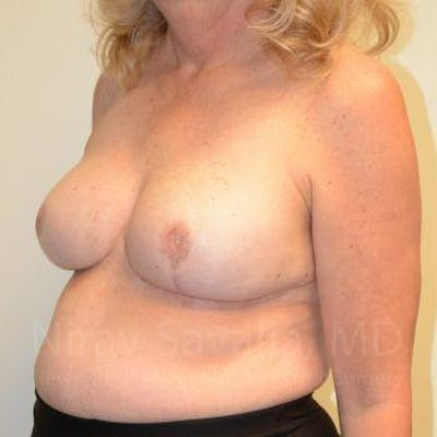 Breast Reduction Gallery - Patient 1655533 - Image 10