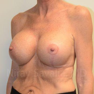 Breast Lift with Implants Gallery - Patient 1655532 - Image 10