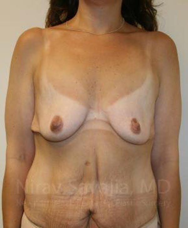 Breast Lift with Implants Gallery - Patient 1655535 - Image 1