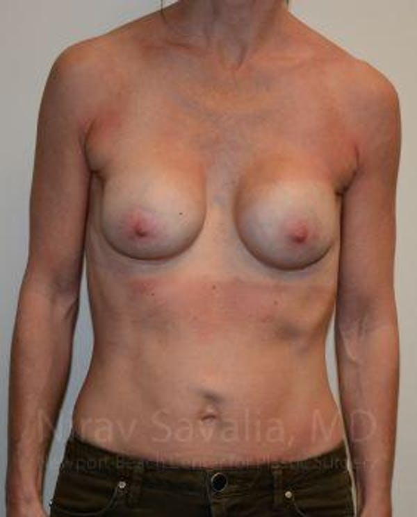 Breast Implant Revision Gallery - Patient 1655536 - Image 1