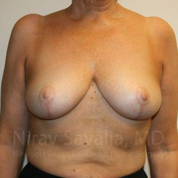 Breast Reduction Gallery - Patient 1655534 - Image 2