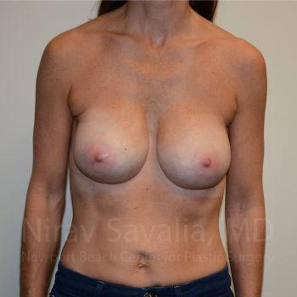 Breast Implant Revision Gallery - Patient 1655536 - Image 2