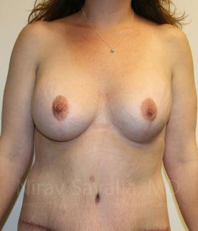 Breast Lift with Implants Gallery - Patient 1655535 - Image 2