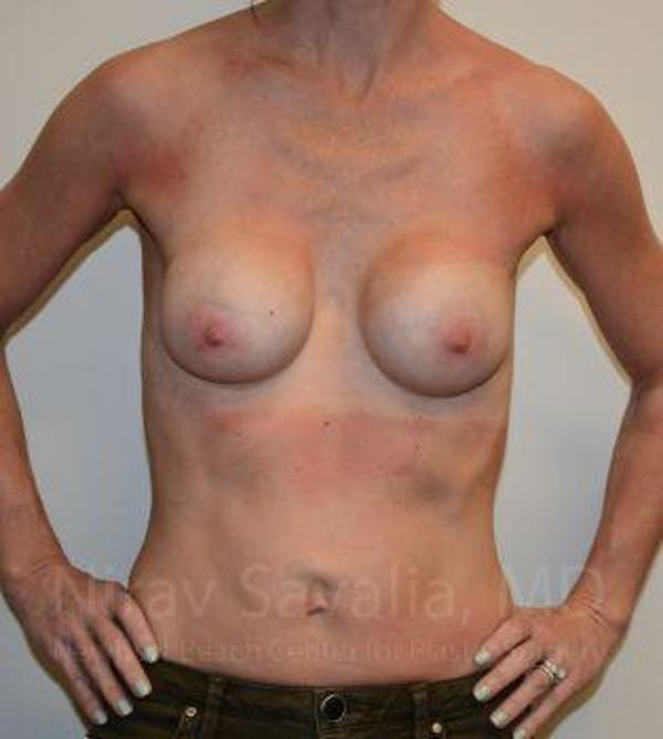 Breast Implant Revision Gallery - Patient 1655536 - Image 3