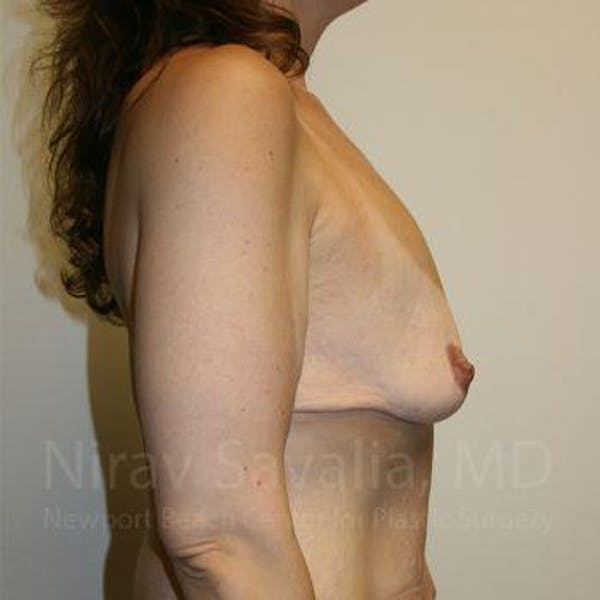 Breast Lift with Implants Gallery - Patient 1655535 - Image 3