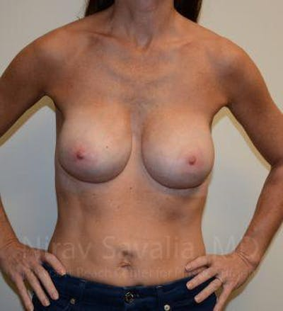 Breast Implant Revision Gallery - Patient 1655536 - Image 4
