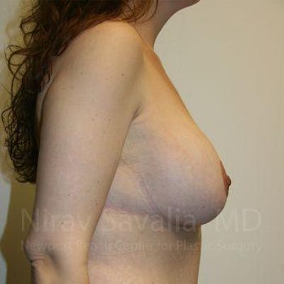 Breast Lift with Implants Gallery - Patient 1655535 - Image 4