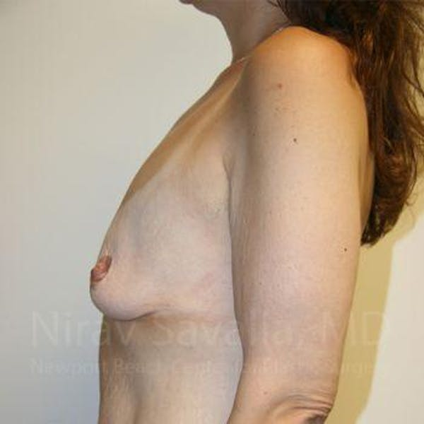 Breast Lift with Implants Gallery - Patient 1655535 - Image 5