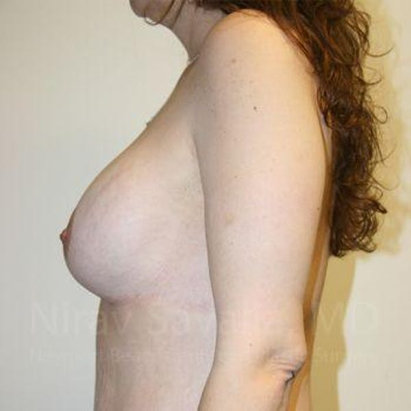 Breast Lift with Implants Gallery - Patient 1655535 - Image 6
