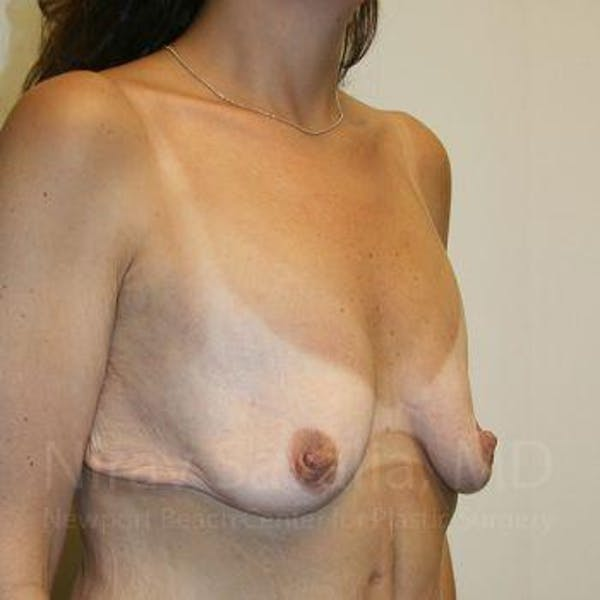 Breast Lift with Implants Gallery - Patient 1655535 - Image 7