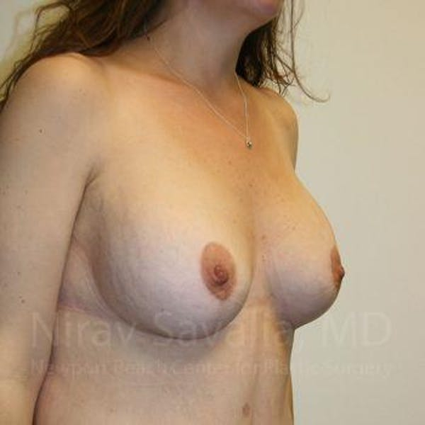 Breast Lift with Implants Gallery - Patient 1655535 - Image 8