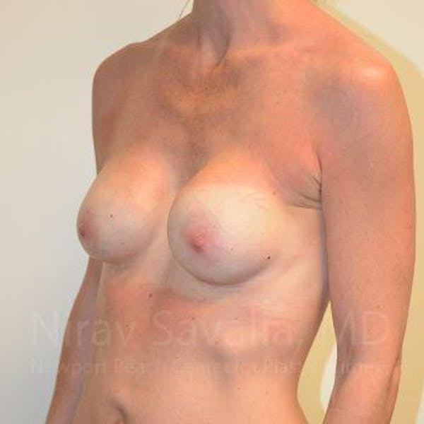 Breast Implant Revision Gallery - Patient 1655536 - Image 9