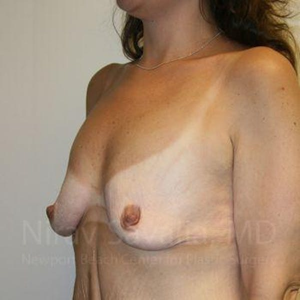Breast Lift with Implants Gallery - Patient 1655535 - Image 9