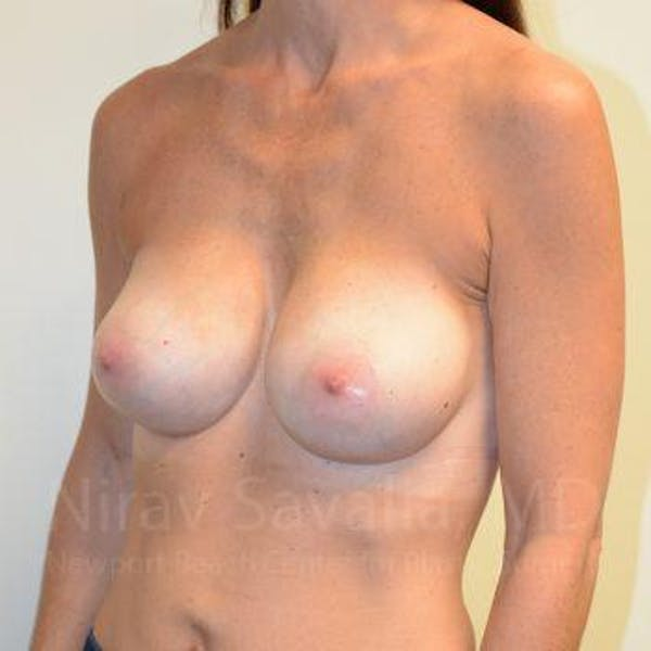 Breast Implant Revision Gallery - Patient 1655536 - Image 10