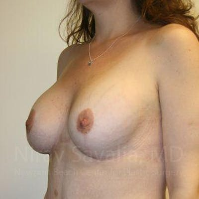 Breast Lift with Implants Gallery - Patient 1655535 - Image 10