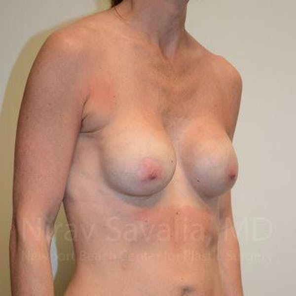 Breast Implant Revision Gallery - Patient 1655536 - Image 11