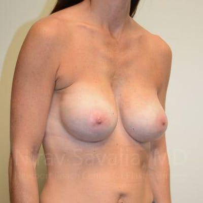 Breast Implant Revision Gallery - Patient 1655536 - Image 12